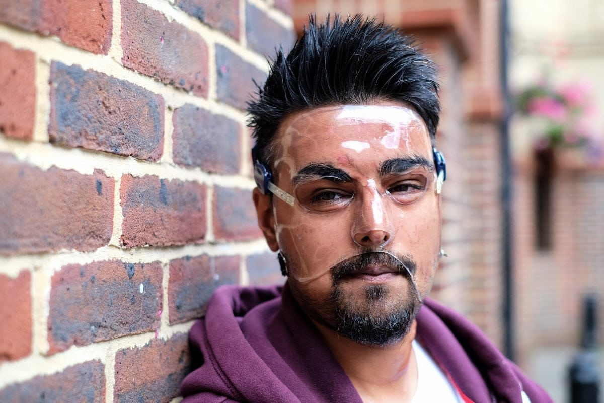 """Samir Hussain wearing a face mask - which he keeps on 24 hours a day - as he recovered from burns suffered in an acid attack.  (file pic) See National News story NNACID; Two men have admitted their part in throwing acid in a cinema-goer's face outside a screening of Straight Outta Compton after shouting """"you can seen gangsters now"""". Samir Hussain was left with life-changing injuries from the horrific burns following the attack at a Cineworld.  The 28-year-old still has to wear a face mask 18 months after the attack in Crawley, West Sussex, in August 2015. Michael McPherson, 27, of Tooting Bec, south London, who threw sulphuric acid in Samir's face, previously admitted grievous bodily harm and will be sentenced at a later date. Lee Bates, 26, of Clapham, south west London, who was with McPherson at the time of the attack and punched Samir, admitted common assault and was sentenced today to a two-year conditional discharge at Brighton Magistrates' Court on Monday."""