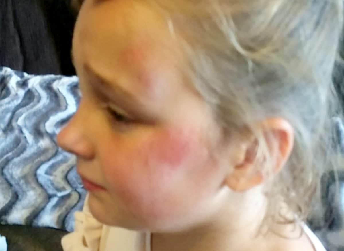 """A ten-year-old girl suffered a broken arm after she was struck by a """"knife-wielding"""" boy dressed as a killer CLOWN. See SWNS story SWCLOWN.  Casie Morrison, ten, was playing in the park with her siblings when a figure emerged from the bushes dressed as a creepy clown wearing a Slender Man mask.  Mum Kirsty, 36, told the boy - who was reportedly carrying a KNIFE - to clear off, and he fled when older boys in the park gave chase.  But the boy barged passed Casie, who was on her bike at the time, causing her to fall to the ground and suffer a broken arm as well as cuts and grazes.  Her furious mum said the boy was trying to terrifying other kids in the park and she has since found out he was aged just NINE.  Police were called following the incident and have spoken to the boy responsible."""