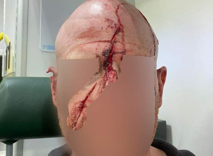The victim suffered horffic injuries during the attack. Credit;SWNS