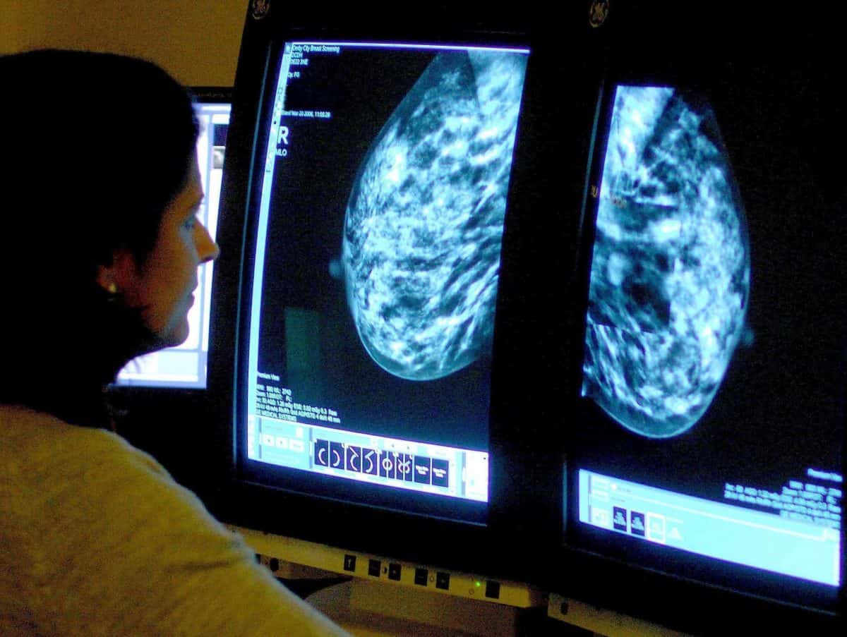 Embargoed to 0001 Wednesday November 20 File photo dated 15/06/06 of a consultant analyzing a mammogram. Simple arthritis drugs used on the NHS could help stop breast cancer spreading, research suggests.